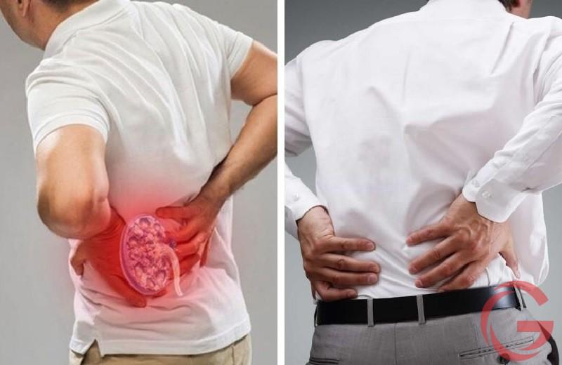 Đau lưng mỏi gối do bệnh thận