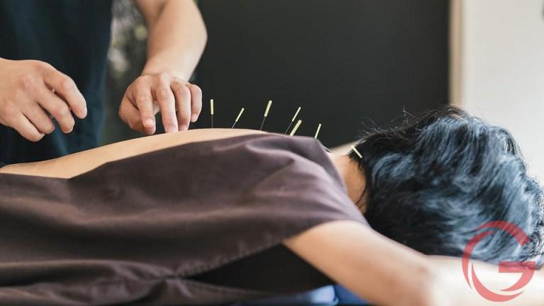 Cách châm cứu chữa đau lưng hiệu quả